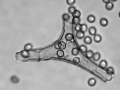 Lycoperdon utriforme