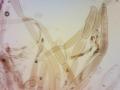Pluteus atromarginatus